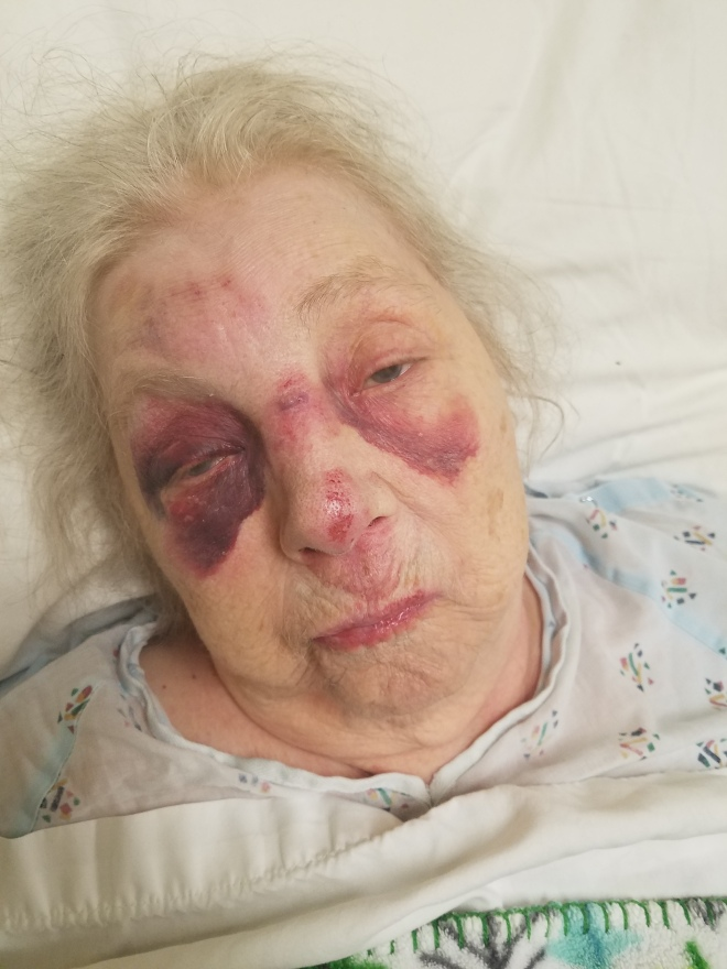 Picture of Mother Bruised Face 2